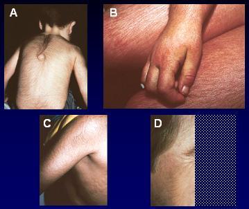 Hiperandrogenismo y piel - Medwave