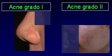 La crema del acné dalatsin el precio