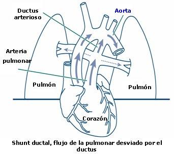 Viagra Dosing For Pulmonary Arterial Hypertension