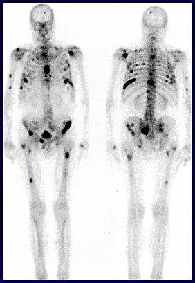 gammagrafia osea cancer de prostata