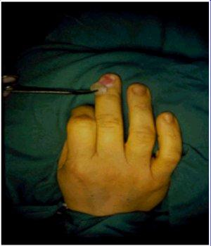 tumor glómico bajo síntomas de diabetes en la uña