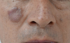 A case report of granuloma faciale, an uncommon cutaneous vasculitis