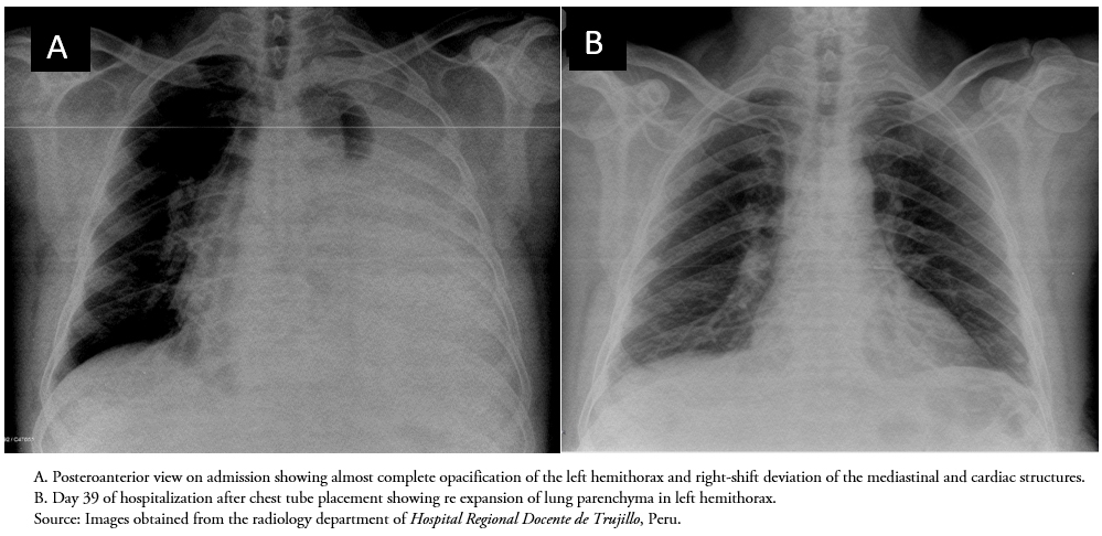 <b>Figure 1.</b> Patient chest X-rays during hospitalization.