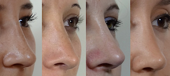 Avoiding irregularities on the nasal dorsum in rhinoplasty