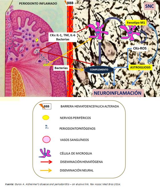Periodontitis como determinante del inicio y progresión de