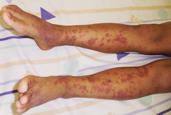 Disease what is hsp Treatments for