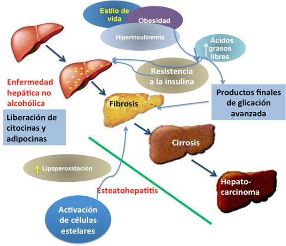 diabetes por esteatohepatitis no alcohólica