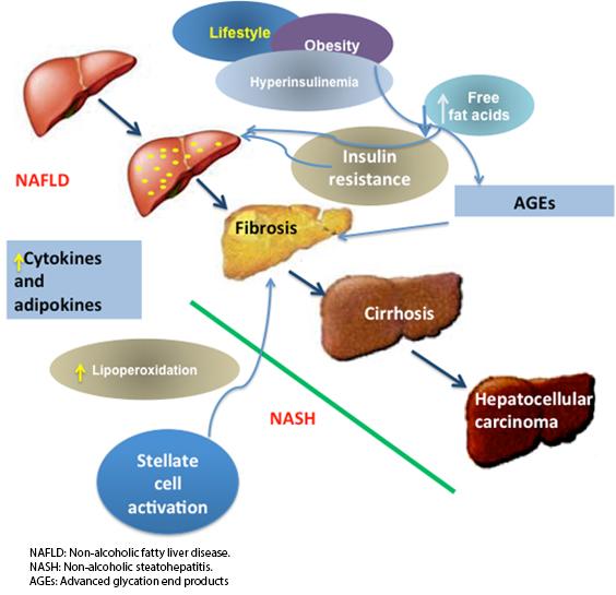 Fatty Liver Treatment Natural Cures