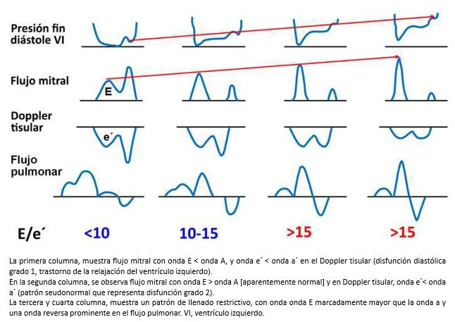 Diagrama de flujo de hipertensión pulmonar
