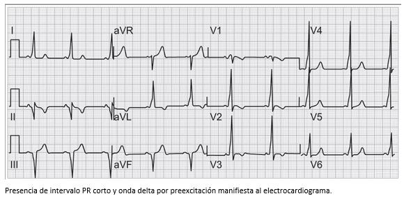 3 consejos para salvar vidas en Que es la hipertensión