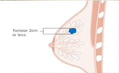 Prophylactic mastectomy versus surveillance for the prevention of breast cancer in women's BRCA carriers