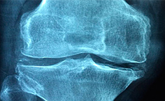 Is pulsed ultrasound an alternative for osteoarthritis?