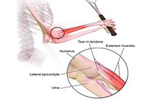 Is wrist splint more effective than forearm band for lateral epicondylitis?