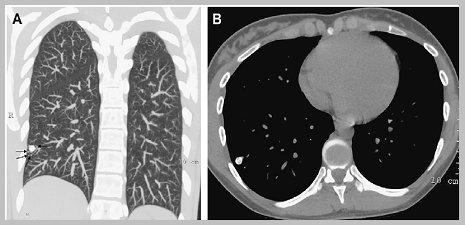 Que significa nodulo pulmonar