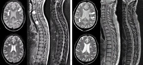Resultado de imagen de RM de la médula espinal