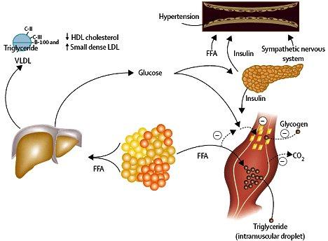 BioVita - Resistencia a la Insulina