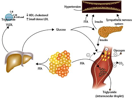 Que causa la resistencia a la insulina