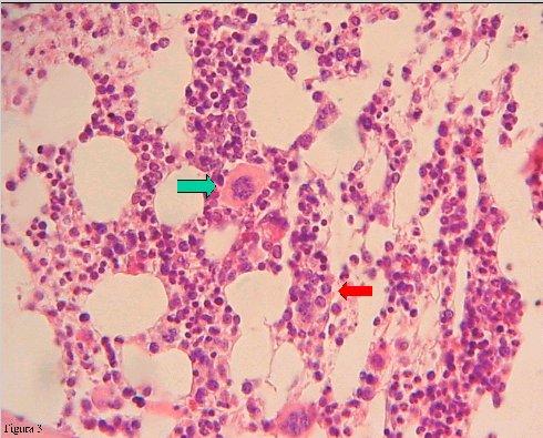 Síndromes mielodisplásicos - Medwave