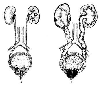 próstata con adenoma central de 3 cm igual