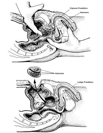 ultrasonido de la próstata en línea de artemisia suprapúbica y transrectal