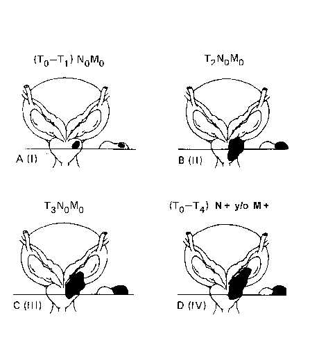 infiltración de la próstata en adenocarcinoma